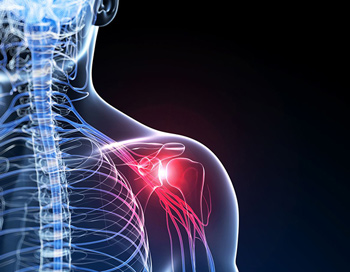 Frozen shoulder treatment in kingston
