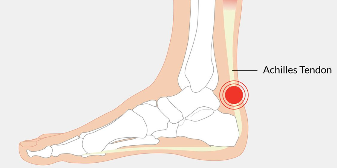 imagination the achilles heel Achilles tendon pain, also called achilles tendonitis or tendonosis, is the result of stiffness, swelling and tearing of connective tissue located around the heel and the sides of the ankle.